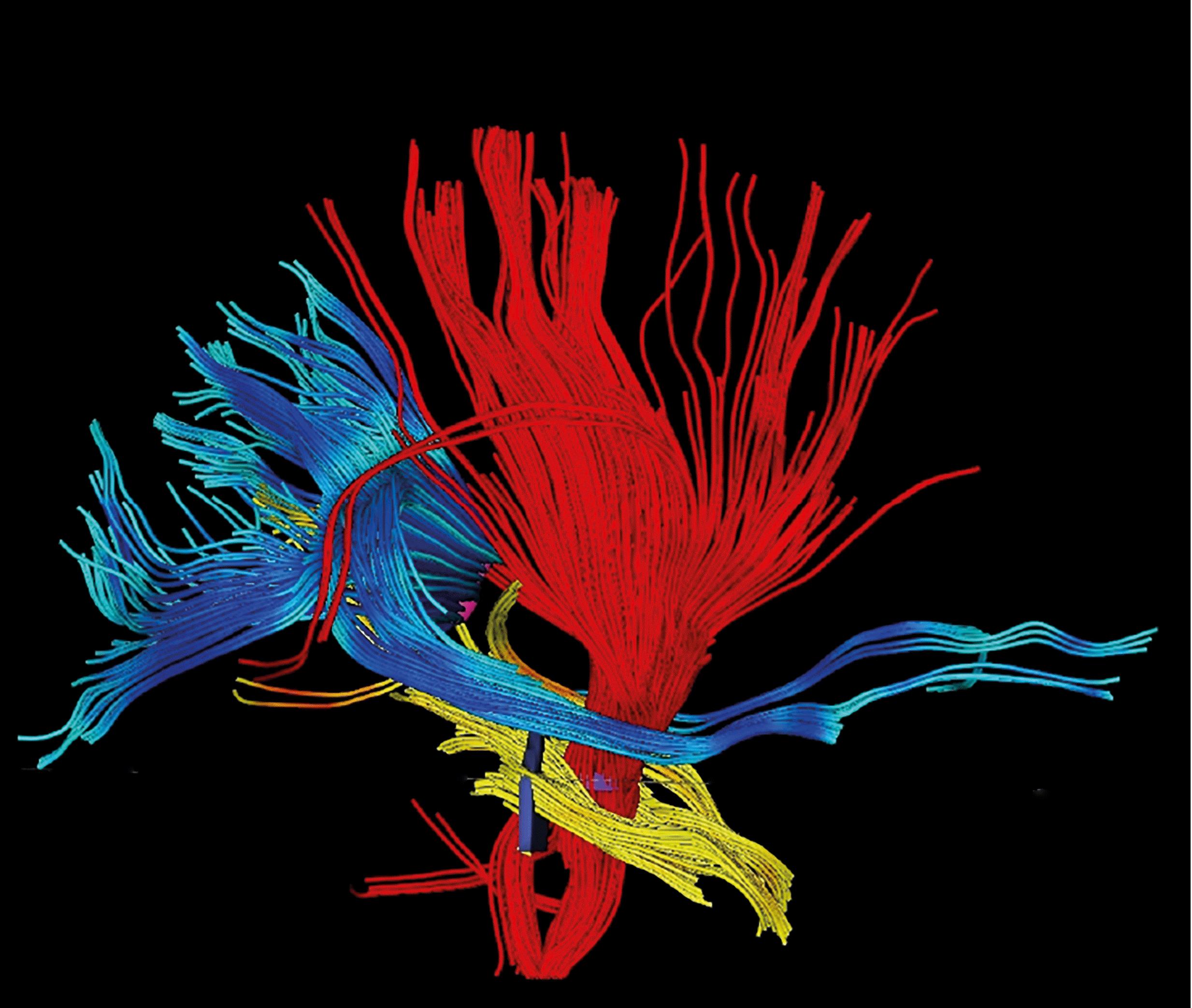 Bild vom Verlauf der Faserbahnen im Gehirn, dargestellt in rot, blau und gelb